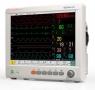 Монитор пациента Edan IM80