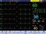 Монитор пациента мультипараметрический OSEN9000D PRO
