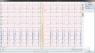 Программма ПО для холтера Heaco BI-6600-3-12